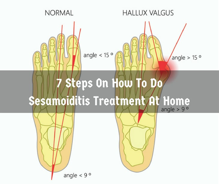 Sesamoiditis Treatment At Home